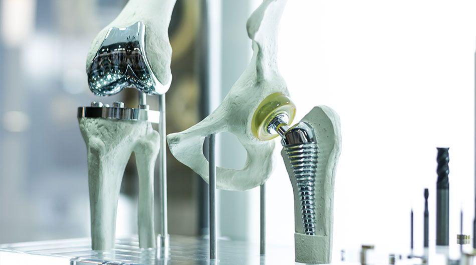 Dank künstlichem Kniegelenk fit & mobil im Alter